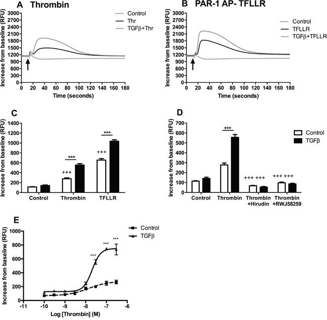 TGFβ-mediated PAR-1 upregulation enhances A549 lung adenocarcinoma cell responsiveness to thrombin signalling.