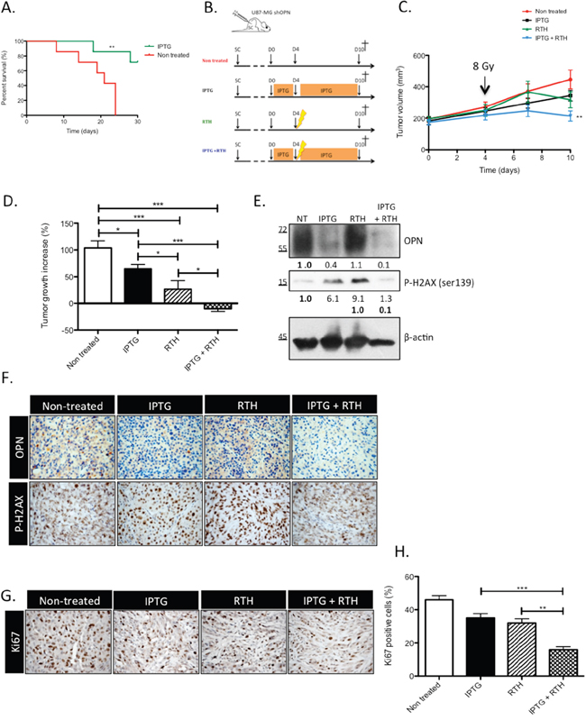 OPN knockdown improves the survival of GBM-bearing mice and induces a tumor shrinking when combined to radiotherapy by decreasing the response to irradiation.