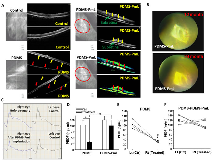 OCT and ocular examination for monitoring long-term biostability of PDMS-PmL in the subretinal space of transplanted porcine.