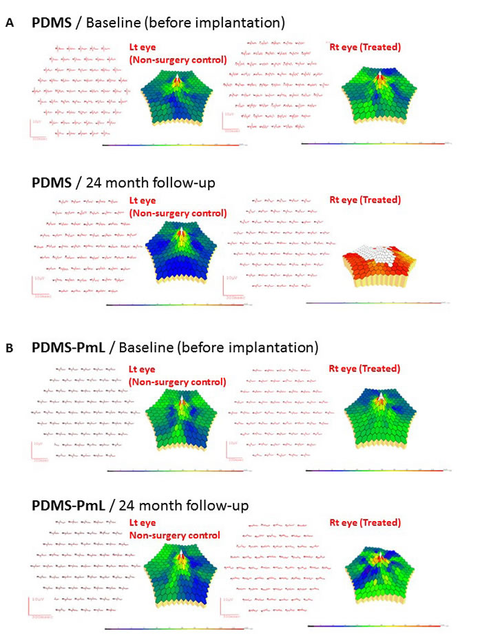Multifocal ERG recordings for monitoring long-term function of PDMS and PDMS-PmL in the subretinal space of transplanted porcine.