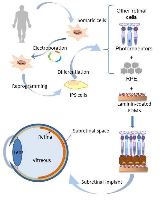 Schematic flow-chart of the potential application of dRPE/PDMS-PmL device in AMD patients.