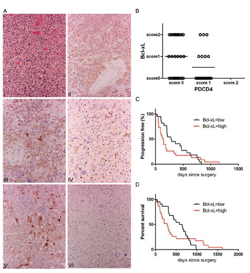 Patient GBM tumors show a correlation between low PDCD4 and high Bcl-xL levels.