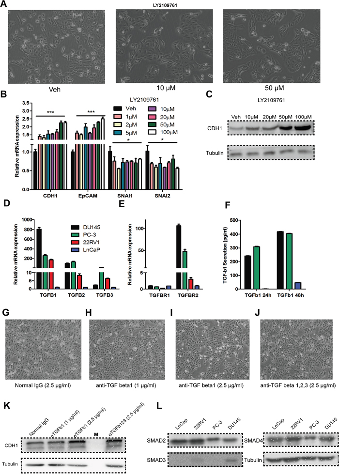 Auto/paracrine function of TGF-beta is important for maintaining the high invasiveness of DU145 cells.