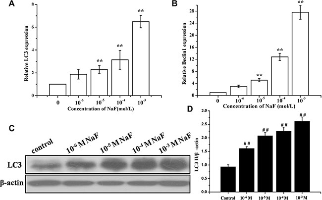 Assessment of autophagy in osteoblast induced by NaF.