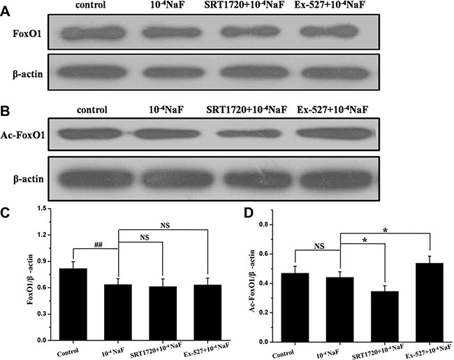 The pathways mediated by SIRT1 in NaF-induced apoptosis and autophagy.