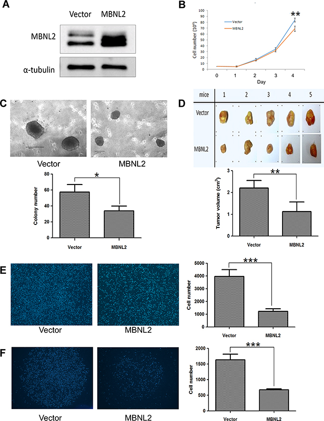 Overexpression of MBNL2 suppressed proliferation and invasion in Hep-J5 HCC cell line.