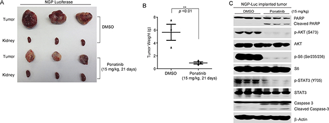 Ponatinib inhibits tumor growth in an orthotopic NB xenograft mouse model.