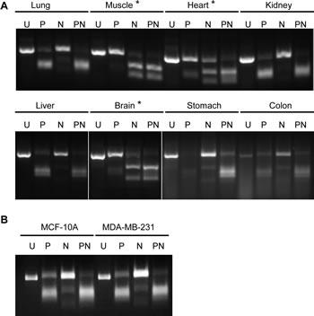 Determination of major PKM isoforms in normal tissues using RT-PCR and restriction enzyme digestion.