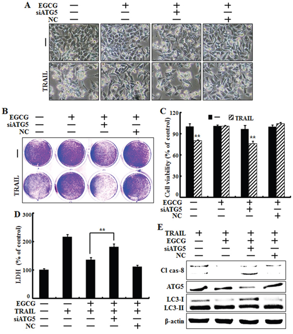 Genetic inhibition of autophagic flux promotes TRAIL-induced cell death upon EGCG treatment.