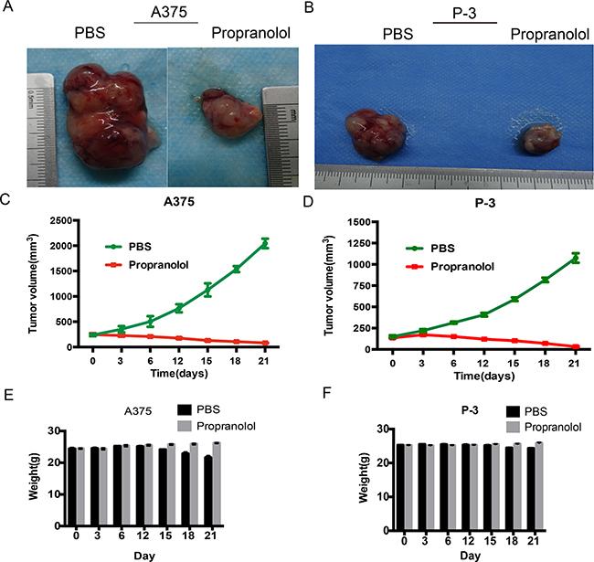 Propranolol inhibits tumor development in xenografts.