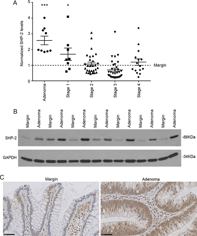 SHP-2 expression in sporadic human colorectal tumors.