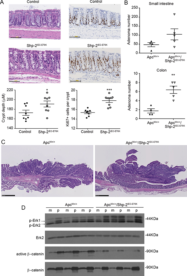 Expression of activated SHP-2E76K mutant in intestinal epithelium deregulates crypt proliferation and increases tumor multiplicity in ApcMin/+ mice.