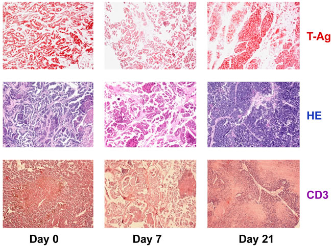 Changes in tumor-associated immune cells in tumors of anti-PD-L1 treated NP8 tumor mice on days 7 and 21, respectively.