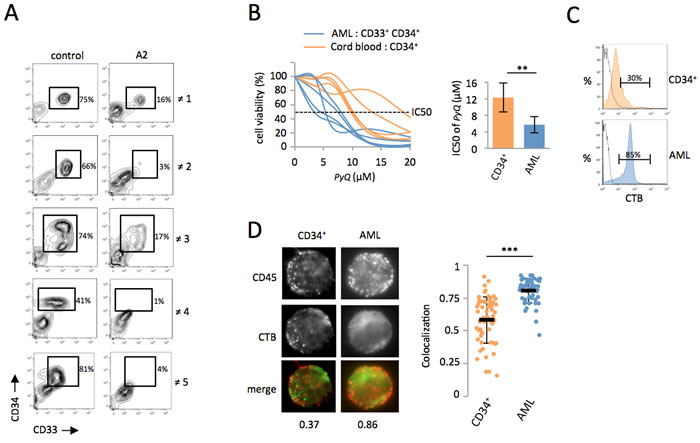 Primary human AML cells are sensitive to