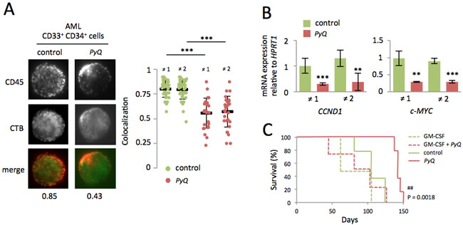 Localization of the CD45 within lipid rafts is important for maintenance of human AML cells.