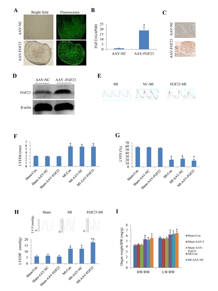 Effects of myocardial injection of AAV-FGF23 in mice with myocardial infarction (MI) on cardiac function.
