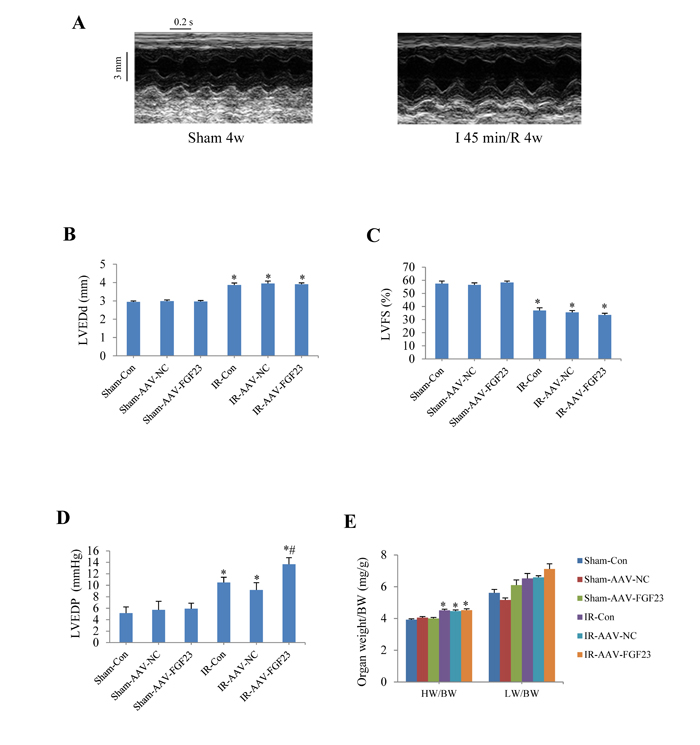 Effects of myocardial injection of AAV-FGF23 in mice with ischemia/reperfusion (IR) on cardiac function.