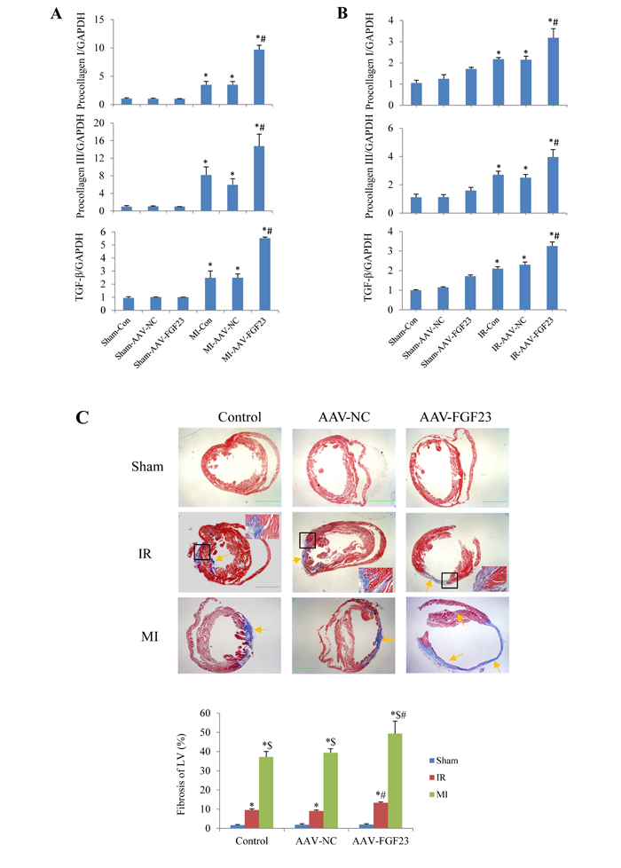 Effects of FGF23 on myocardial fibrosis induced by myocardial infarction (MI) or ischemia/reperfusion (IR).