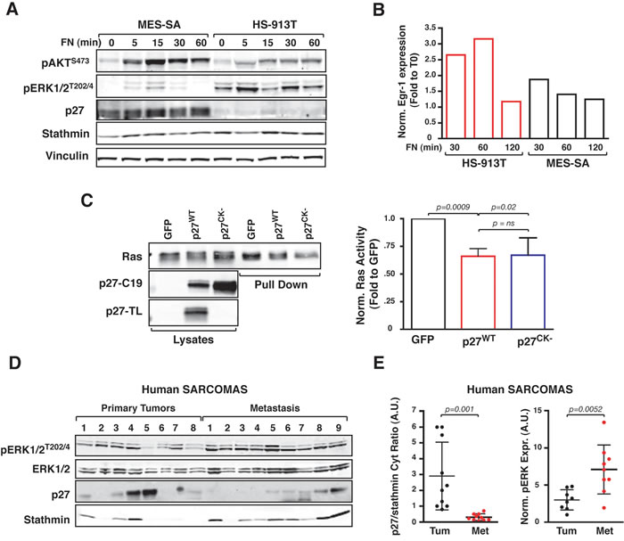 Low cytoplasmic p27/stathmin ratio is associated with hyper-activation of ERK1/2 pathway in human sarcoma and sarcoma-derived cell lines.