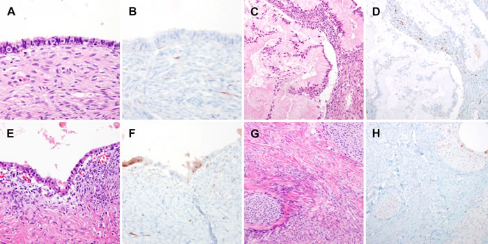 Stromal p16 overexpression in benign ovarian tumors.