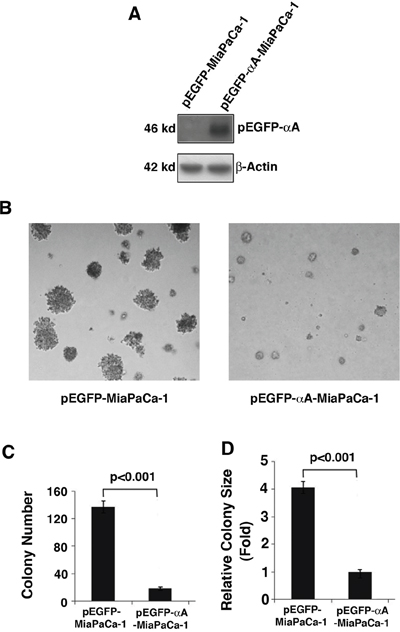 Effects of αA-crystallin expression on cell anchorage-independent growth.
