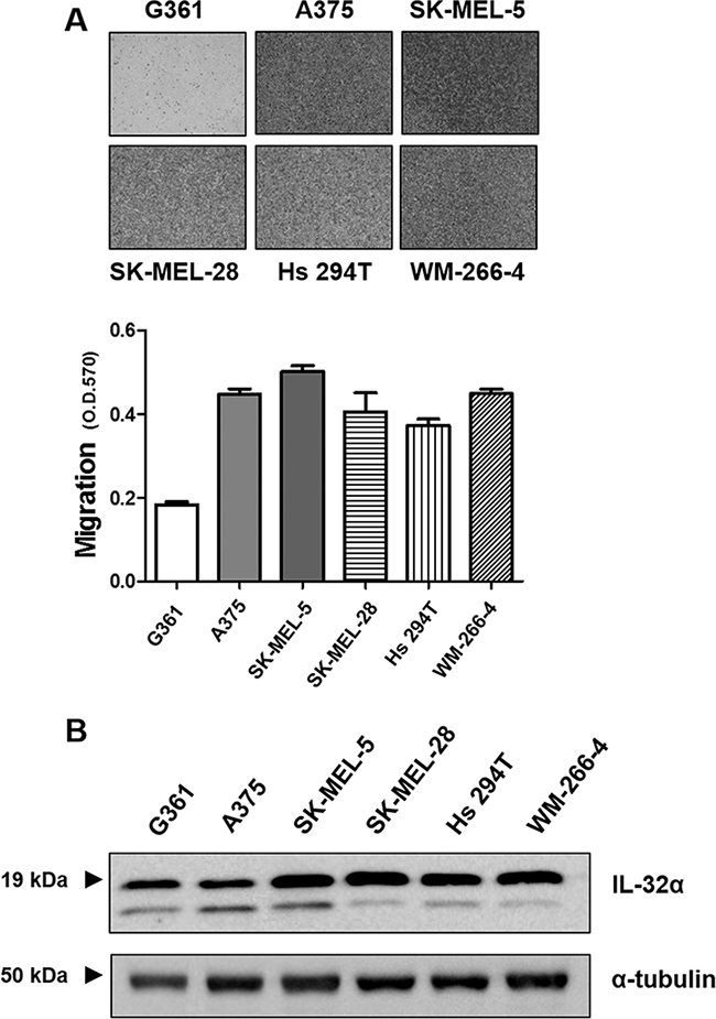 IL-32α expression is higher in migratory human melanoma cell lines.