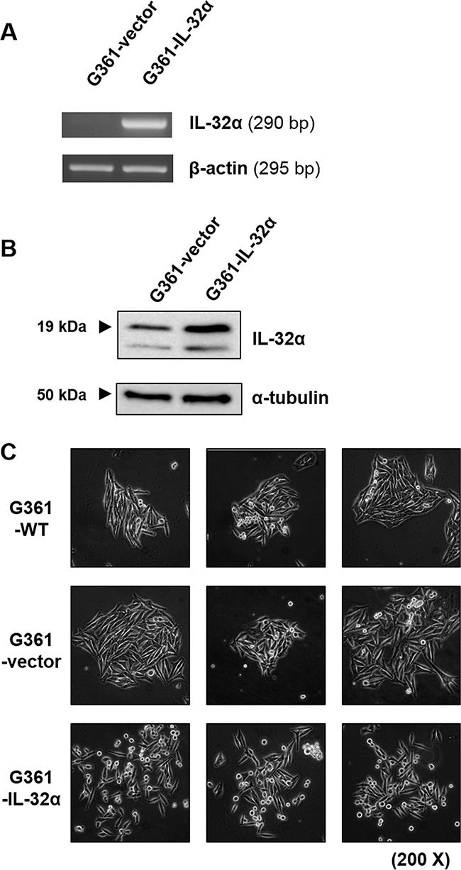 IL-32α-overexpressing G361 cells exhibit a round phenotype.