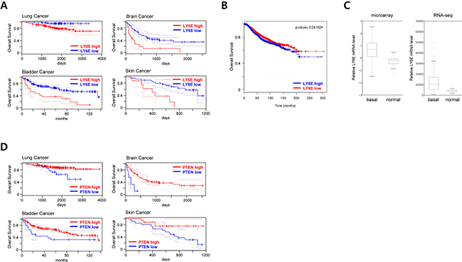 Clinical implication of LY6E in human cancer.