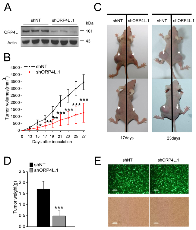 Knockdown of ORP4L in C33A cells inhibits tumor growth.