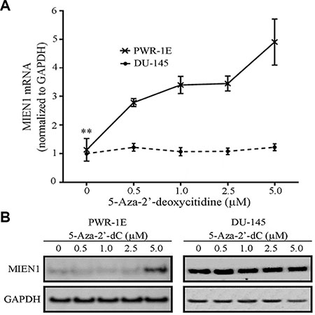 MIEN1 RNA and protein increases upon global methylation inhibition using 5-Aza-2′-deoxycytidine.