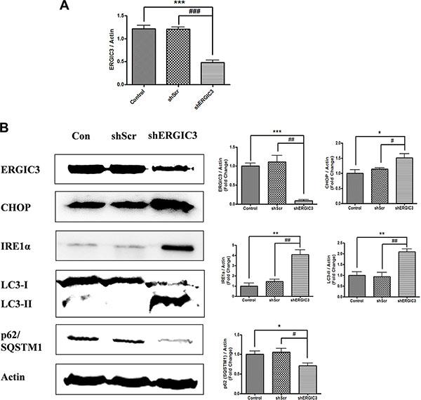 Aerosol delivery of shERGIC3 triggers ER stress-induced autophagy in K-rasLA1 mice.