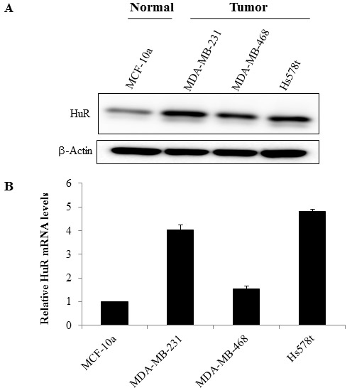 HuR is overexpressed in TNBC cells.