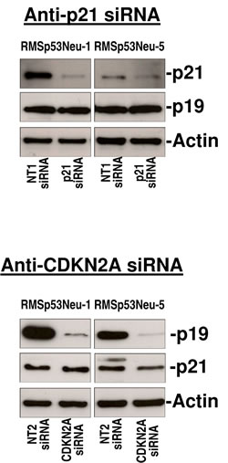 Gene silencing in rhabdomyosarcoma cell lines with siRNAs against
