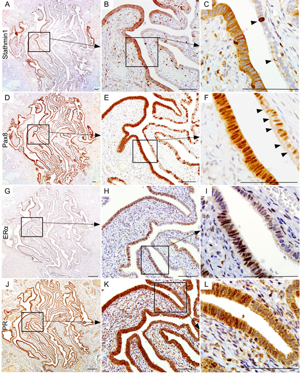 Wnt activation marks the human ovarian cancer precursor lesions.