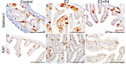 Expression of human ovarian cancer markers in the tumorous lesions observed in the fallopian tube of mutant mice.