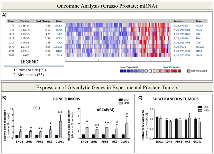 Warburg Effect-associated genes are upregulated in patients with metastatic prostate cancer and in bone tumors from mice with enhanced marrow adiposity.