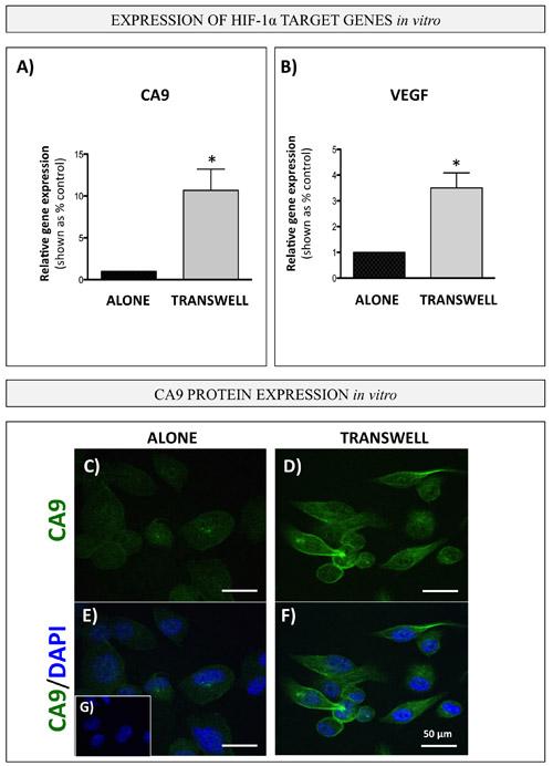 Bone marrow adipocytes activate HIF-1α signaling in PCa cells