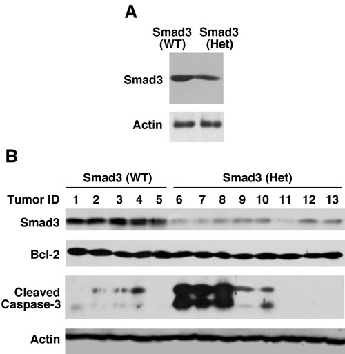 Cleaved caspase-3 is markedly increased in certain adenosquamous carcinomas from Smad3 heterozygous mice.