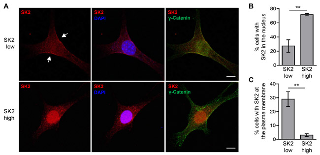 Varying levels of SK2 overexpression affect its subcellular localization.