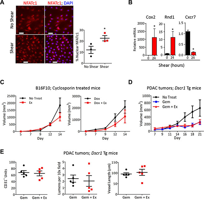 NFAT is necessary for vascular normalization by exercise-induced shear stress.