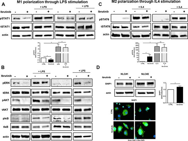 Ibrutinib supports M2 signaling pathways by interfering with M1 polarization.