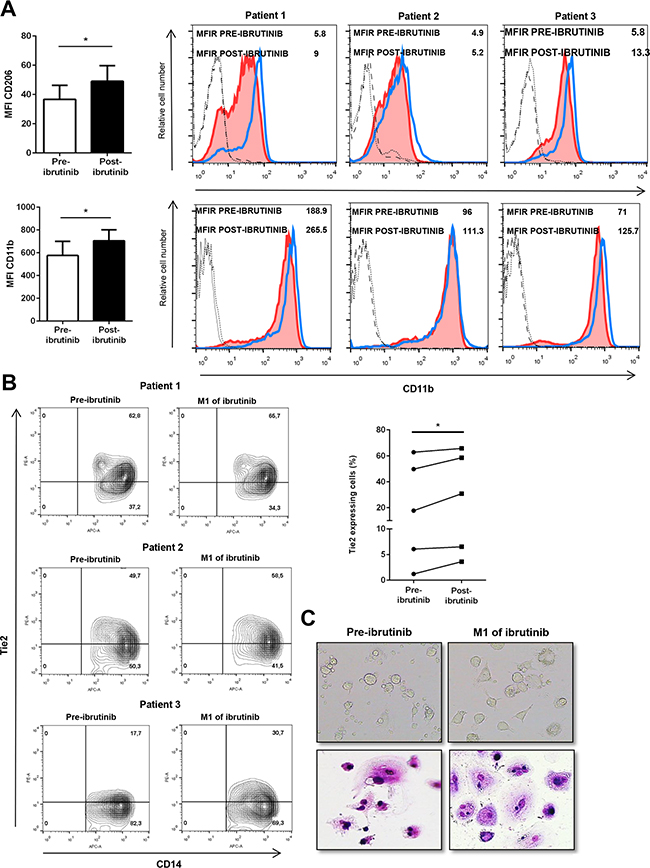 Ibrutinib alters the circulating monocytes in CLL patients.