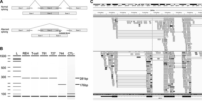 Mutation g.chrX:70339329T>C in MED12 causes the splicing of exon 2.