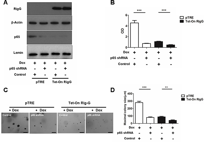 NF-κB is important in RIG-G-induced cell growth inhibition.