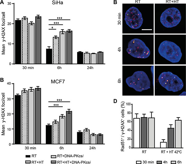 Persisting ionizing radiation induced foci (IRIF) in SiHa and MCF7 cells after radiation treatment combined with DNA-PKcsi and HT.
