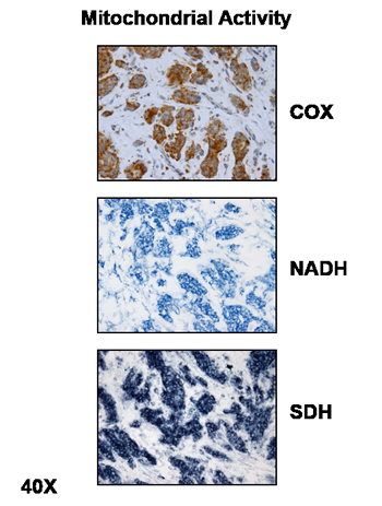 Mitochondrial Activity Staining in Fresh Frozen Human Breast Cancer Tumor Tissue Sections.