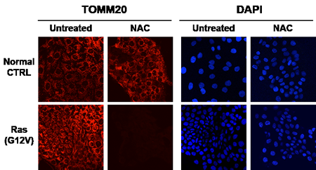 Anti-Oxidants Halt Mitochondrial Biogenesis Selectively in Cancer Cells, But Not in Non-transformed Epithelial Cells.