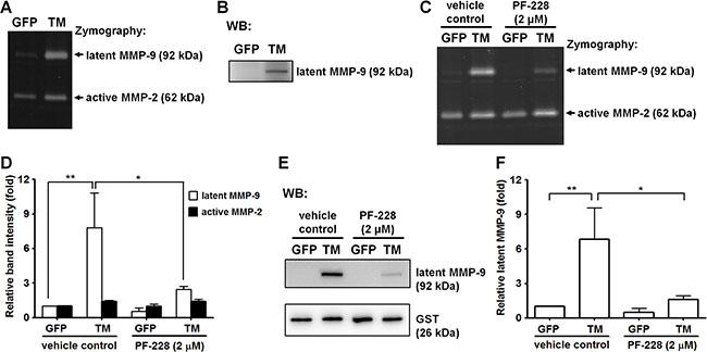 Exogenous expression of TM enhances MMP-9 production.