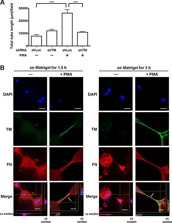 TM enhances endothelial tube formation and fibronectin fibrillogenesis in vitro.