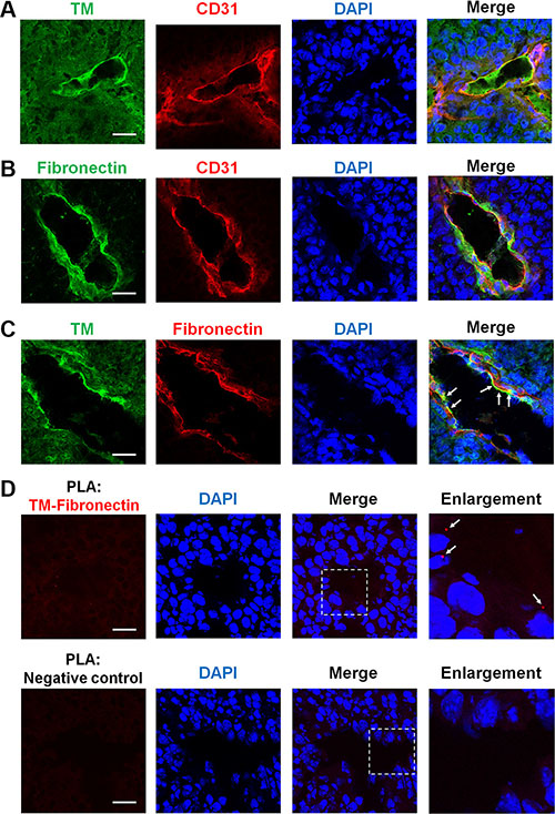 TM is expressed on tumor blood vessels and binds to fibronectin during tumor angiogenesis.